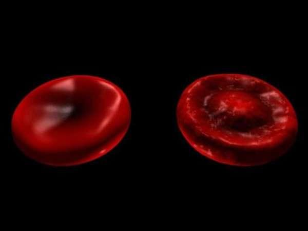 Механизм формирования патологических мишеневидных эритроцитов в кровяной плазме