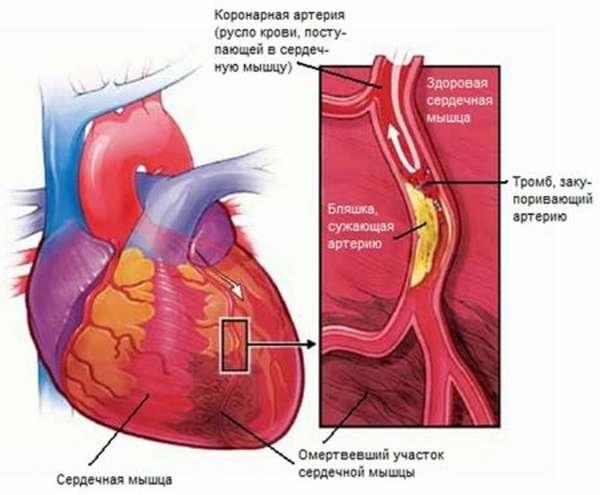Клинические отличия Q образующего инфаркта миокарда и некроза без патологического зубца