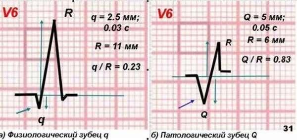 Как могут быть диагностированы заболевания сердца при патологическом зубце q на ЭКГ?