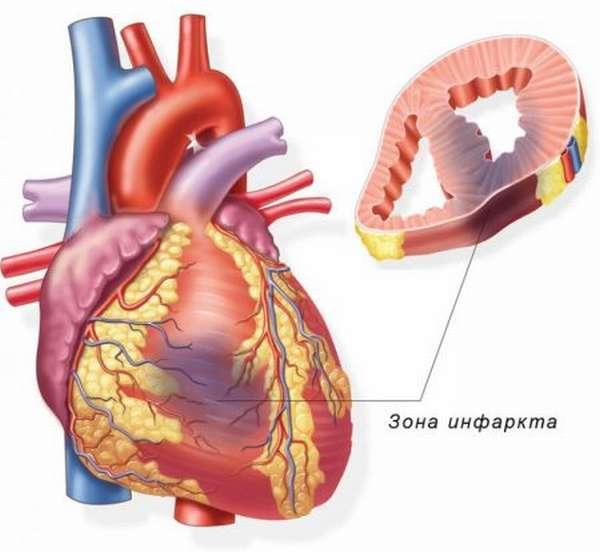Связь инфаркта миокарда и стенокардии, причины развития и методы лечения патологий
