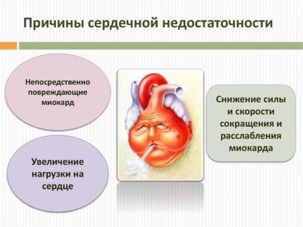 Кто ответит на вопрос: можно ли пить кофе после подтверждения диагноза инфаркт миокарда?