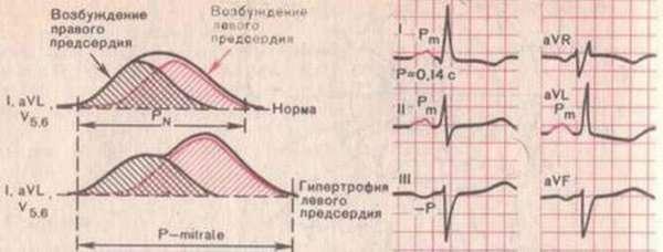 Этиология гипертрофии левого предсердия и принципы лечения патологии