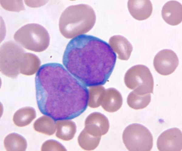 Нормы бластных клеток в анализе крови, диагностика и расшифровка результатов