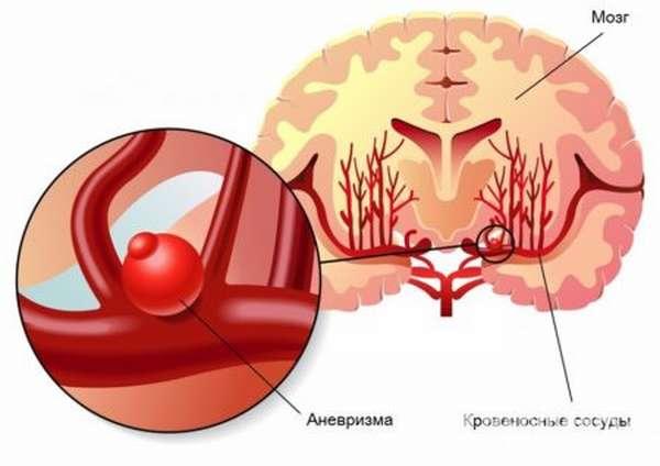 Причины рвоты при инсульте, методы борьбы с проблемой