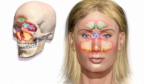 Синусит - симптомы и лечение в домашних условиях