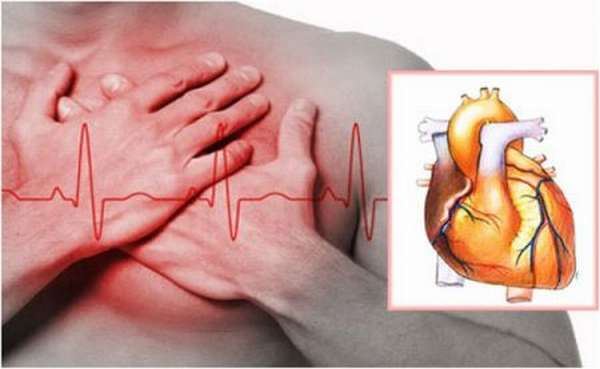 Отличия приобретенных пороков сердца от врожденных, виды и симптомы патологий, лечение