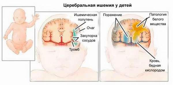 Насколько опасными могут быть симптомы церебральной ишемии у новорожденного и взрослого?