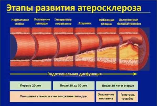 Причины развития, возможные последствия и лечение стенозирующего атеросклероза артерий нижних конечностей