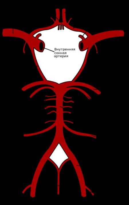 Причины возникновения аневризмы сосудов головного мозга, симптомы, диагностика, последствия и лечение