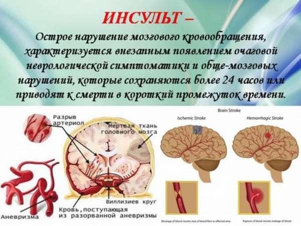 Причины и этиология ишемической и геморрагической форм инсультов, от чего они случаются и какие бывают последствия?