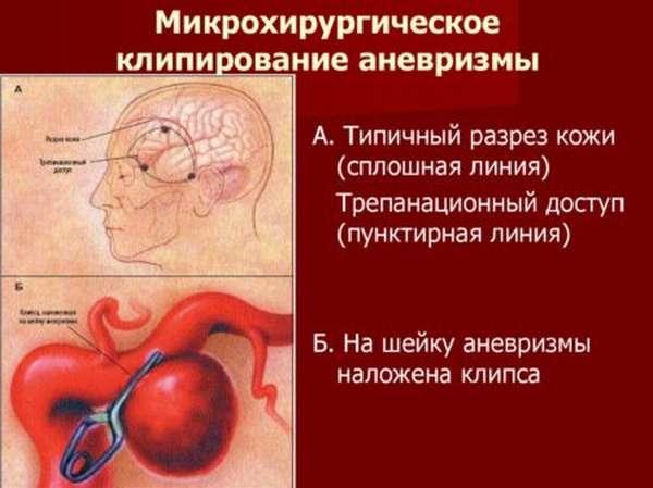 Проведение клипирования аневризмы головного мозга, этапы проведения и риски