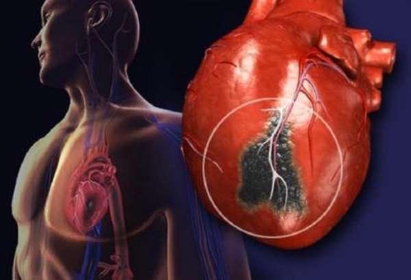 Что следует делать пациенту при повышенном уровне холестерина до 7,7 ммоль/литр?