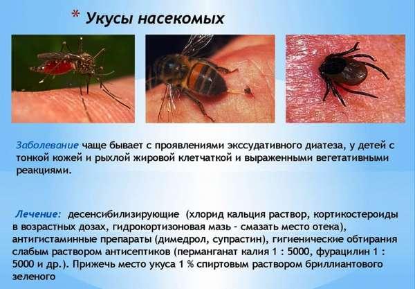 Аллергия на укусы насекомых: причины, симптомы и лечение