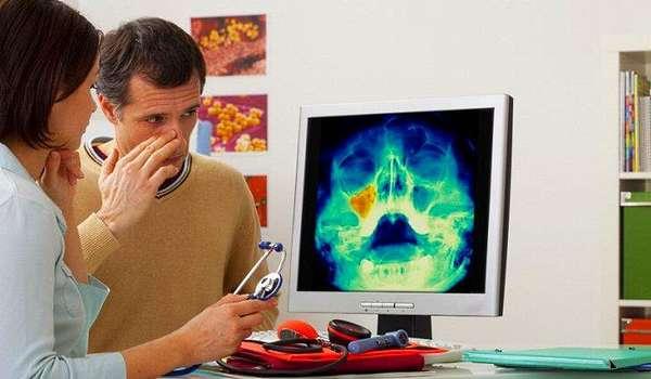 Что случится при несвоевременном обращении к врачу