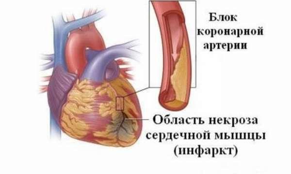 Факторы возникновения резкой боли в сердце и ее устранение