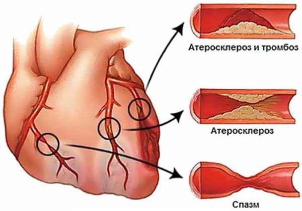 Принципы лечения инфаркта миокарда в стационарах, тактика и профилактика