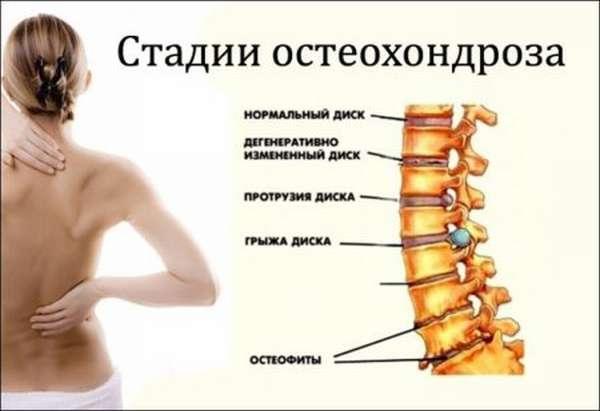 Причины болей за грудиной посередине, что делать для их устранения?