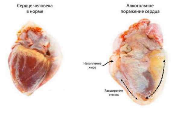 Развитие симптомов аритмии сердечной мышцы после употребления алкоголя, признаки