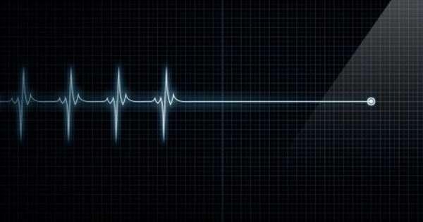 Причины развития гемоперикарда, методы диагностики и лечение, прогноз