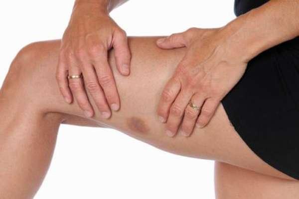 Насколько опасны пониженные тромбоциты в организме человека?