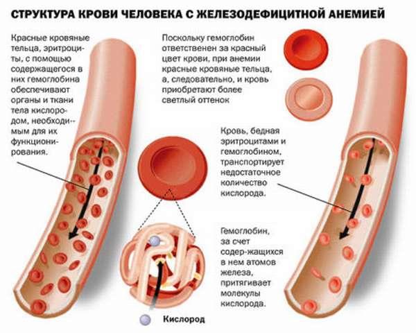 Содержание гемоглобина у новорожденных: нормы в таблицах, причины отклонений