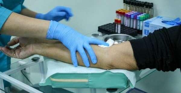 Что показывают анализы крови на токсоплазмоз и чем опасно заболевание?