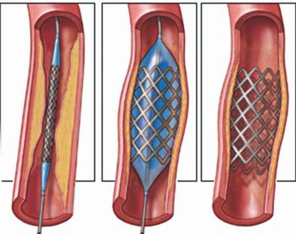 Особенности методов реваскуляризации миокарда: преследуемые цели, противопоказания и прогноз
