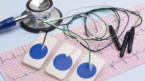 Эффективность процедуры ЭКГ при ИБС: насколько точным может быть поставленный диагноз в покое, после приступа и с нагрузкой?