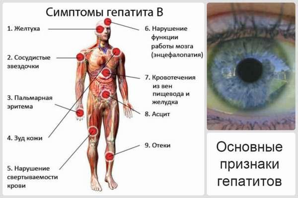 Симптомы гепатита B