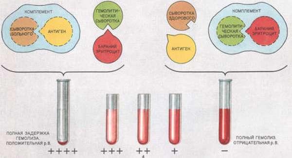 Как в лаборатории диагностируют сифилис при помощи анализа крови РМП?