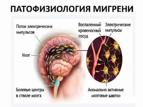 Вегето-сосудистая дистония, особенности головных болей при ВСД, лечение