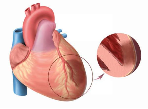 Несколько причин развития атеросклероза сосудов, методы терапии, профилактики и прогноз