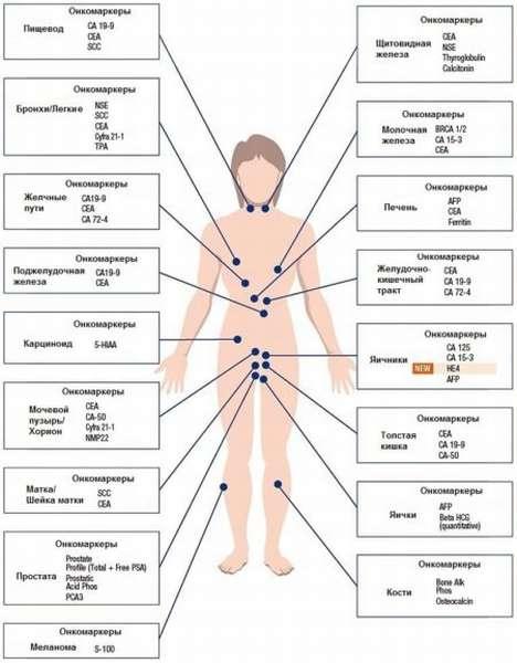 Что означают онкомаркеры в анализе крови Са 72 4? Расшифровка показателей