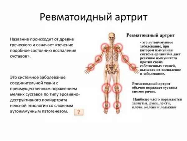 Расшифровка показателей в анализах крови, о чем говорит индекс ревматоидный фактор и причины отклонений от нормы