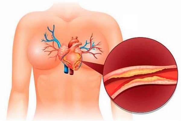 Понятие атеросклеротического кардиосклероза, причины развития болезни, ее разновидности