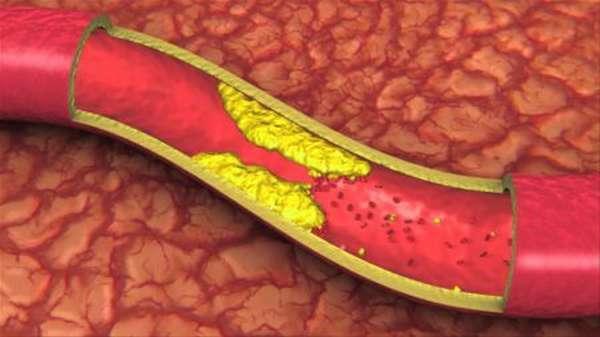 Отличие признаков ишемической болезни сердца у женщин, от симптоматики у мужского пола