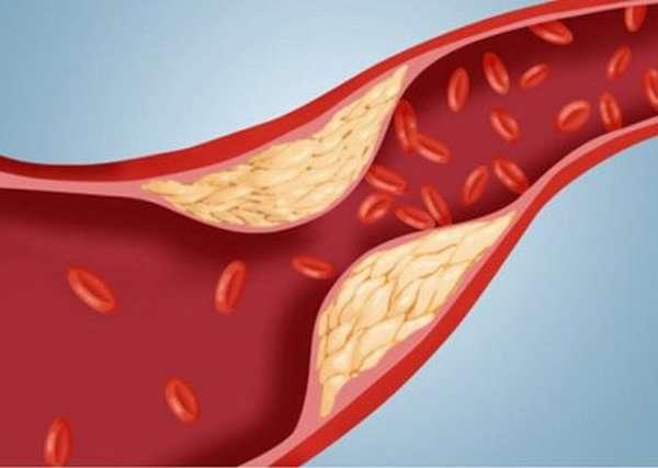 Чем полезен рыбий жир при повышенных показателях холестерина, и кому можно его принимать?