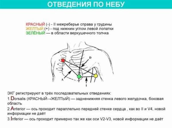 Может ли ЭКГ по методу Неба полностью заменить классическую кардиограмму?