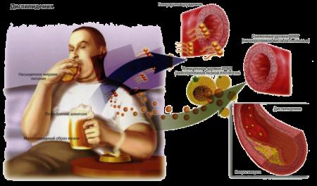 Показатели липидного профиля, почему он так важен, и зачем нужно проводить сдачу крови?