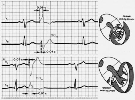 Основная характеристика бигеминии и признаки нарушения сердечной работы