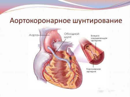 Симптомы и лечение атеросклероза сосудов сердца, эффективные способы и советы
