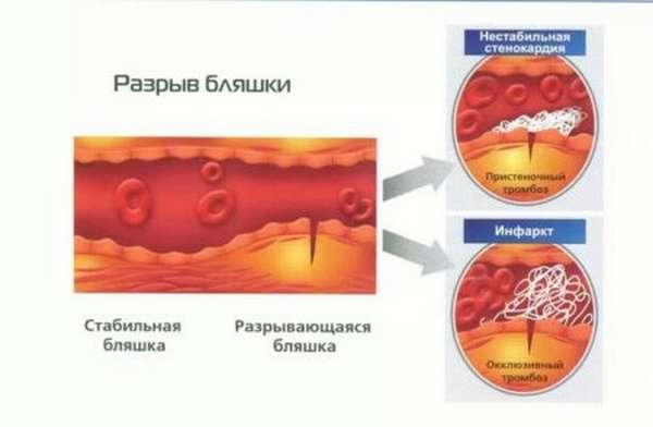 Типы дифференциальной диагностики инфаркта миокарда, проблемы постановки диагноза