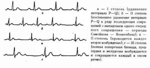 В чем опасность для жизни атриовентрикулярной блокады узла сердца?