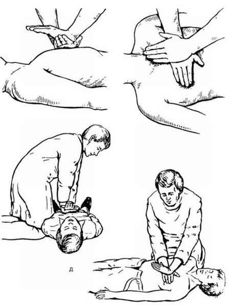 Как оказать первую помощь при инфаркте: подробная инструкция и советы
