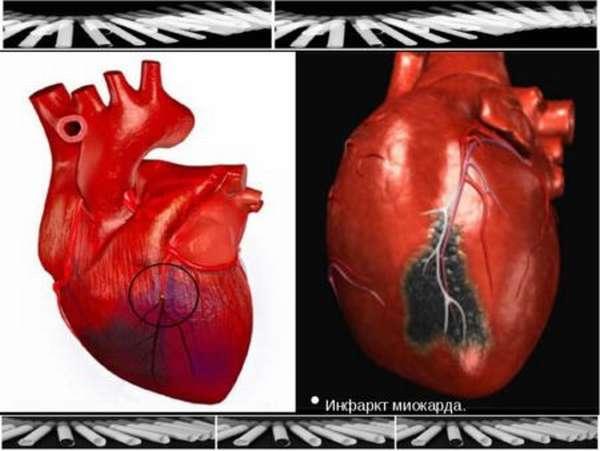 Рекомендации по восстановлению здоровья после инфаркта в пожилом возрасте