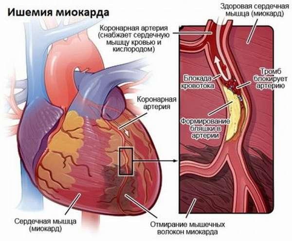 Особенности, симптомы и лечение, профилактика нестабильной стенокардии