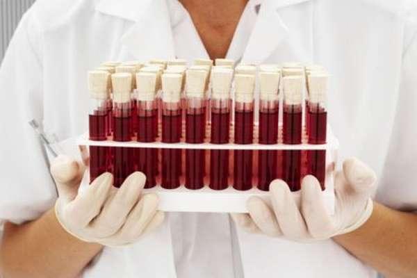 Как определить самую редкую группу крови, описание типов