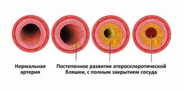 Последствия от инфаркта миокарда, классификация, кому грозит, первая медицинская помощь и причины смерти