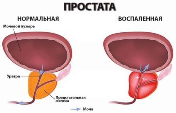 Причины назначения анализа на концентрацию гормонов у мужчин