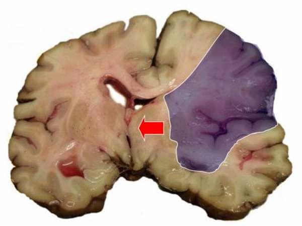 Показания к проведению операции при инсульте головного мозга